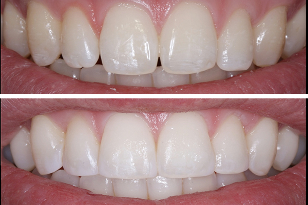 Before and after pictures of cosmetic bonding at Elmet Dental Care